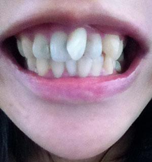 前歯が斜めになっていて出っ歯、前歯だけの治療法、費用、