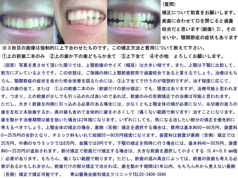 奥歯に合わせて口を閉じると過蓋咬合、顎関節症の症状も