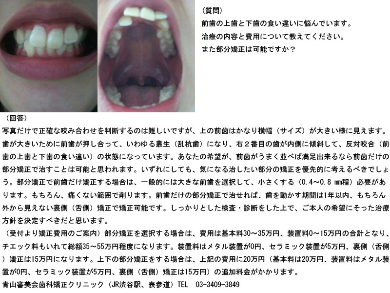 前歯の上歯と下歯の食い違いに悩んでいます。部分矯正は