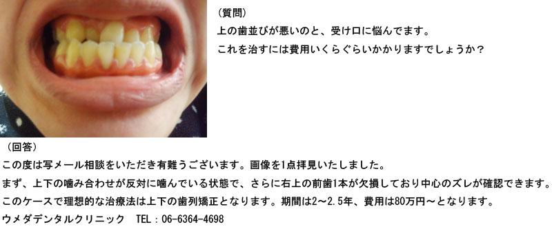 (写真)上の歯並びが悪いのと、受け口に悩んでます。費用は?