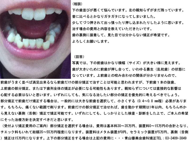 下の歯並びが悪く、左の親知らずも、歯の裏側矯正の費用