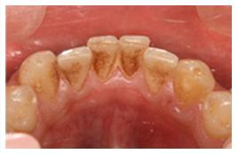 歯科で行うプロのクリーニング ...
