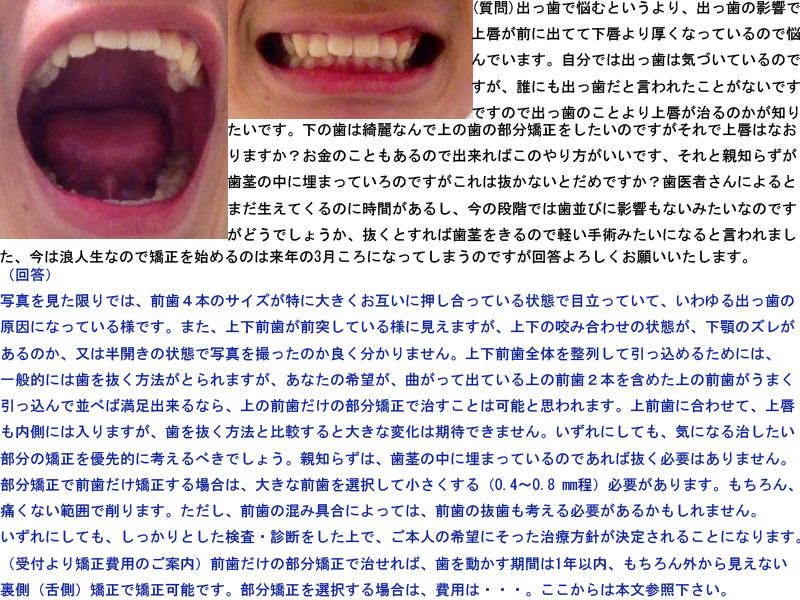 下の歯は綺麗なんで上の歯の部分矯正をしたい