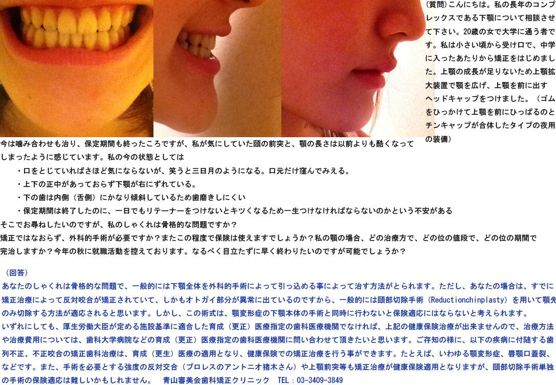 長年コンプレックスである下顎(受け口)について。20歳大学