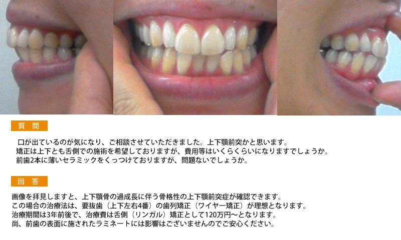 (写真)上下顎前突 上下とも舌側での施術を希望しております