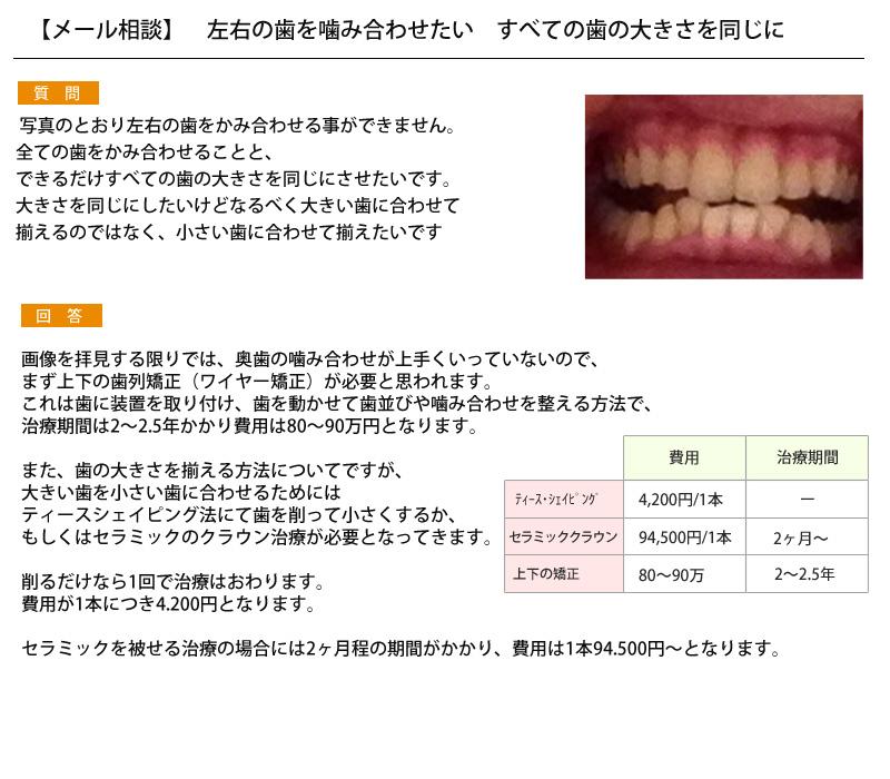 (写真)歯の噛み合わせ、すべての歯の大きさを同じにしたい