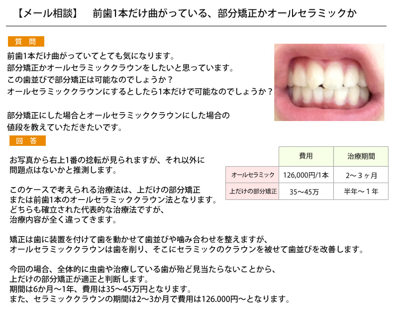 (写真)前歯1本だけ曲がっている、部分矯正かオールセラミックか