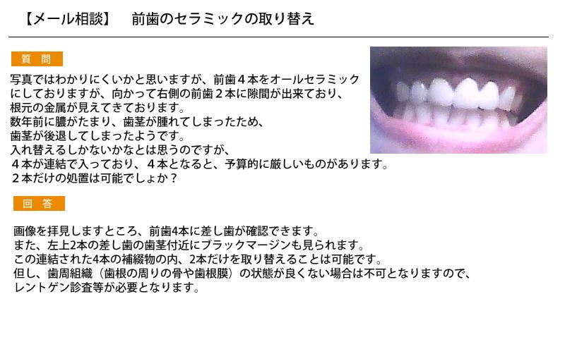 (写真)前歯のセラミックの取り替え