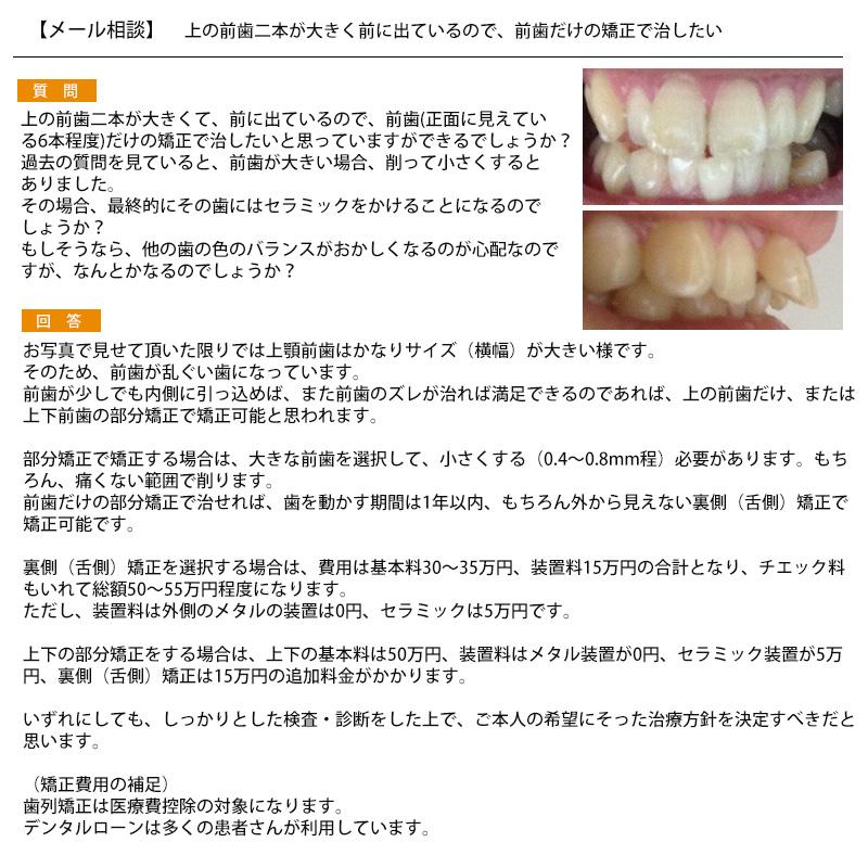 上の前歯二本が大きく前に出ているので、前歯だけの矯正で治したい