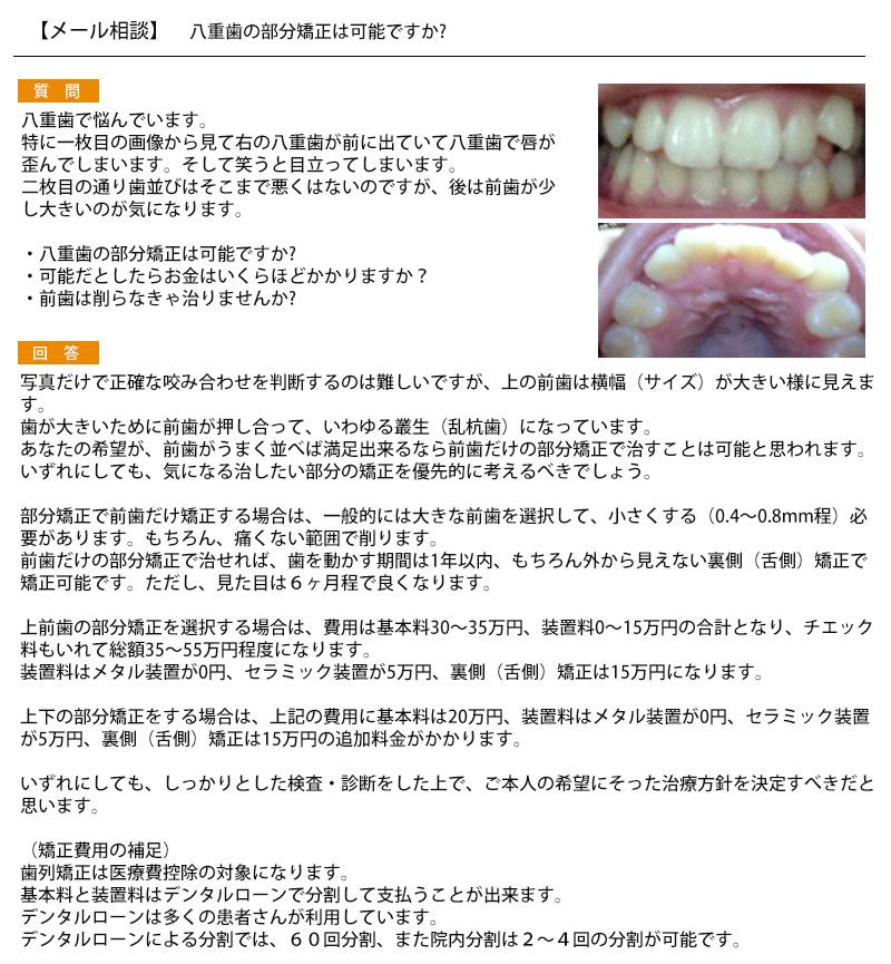 八重歯の部分矯正は可能? 八重歯で唇が歪んで 歯並びは悪くはない 前歯が少し大きい