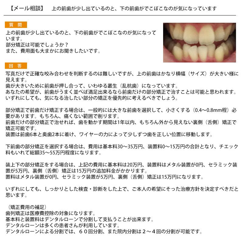 上の前歯が少し出ているのと、下の前歯がでこぼこなのが気に 部分矯正は可能?費用面も