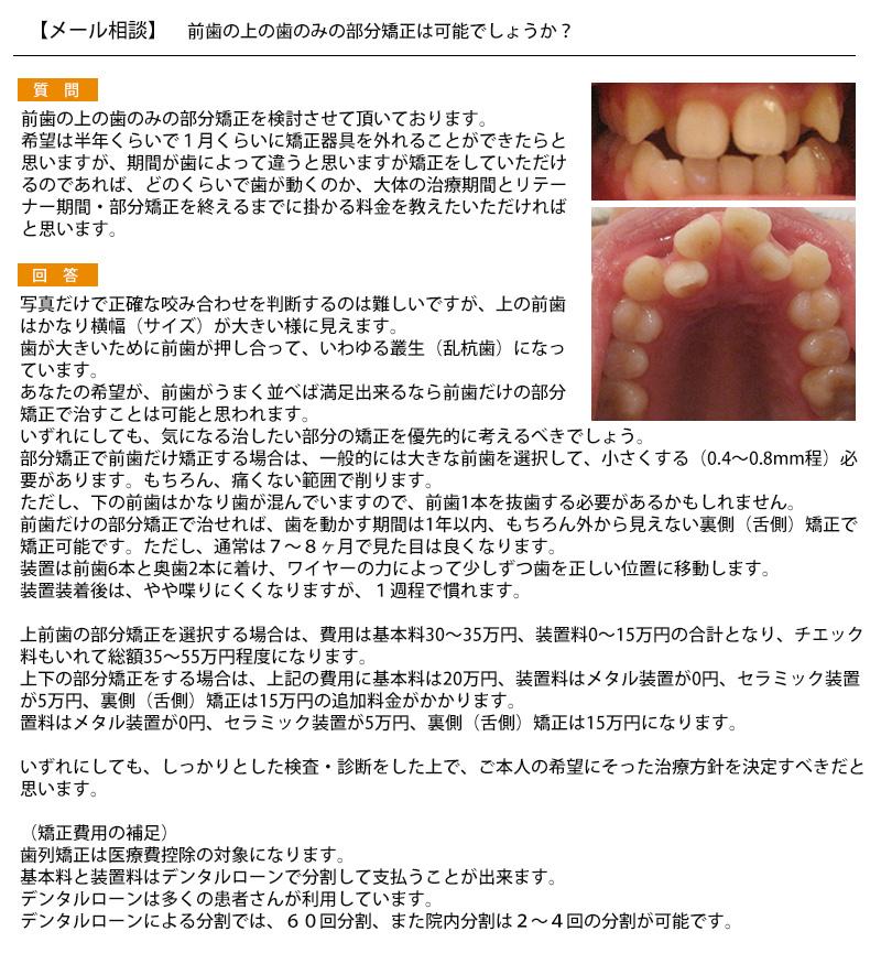 前歯の上の歯のみの部分矯正は可能?希望は半年で矯正器具を外れること 料金?