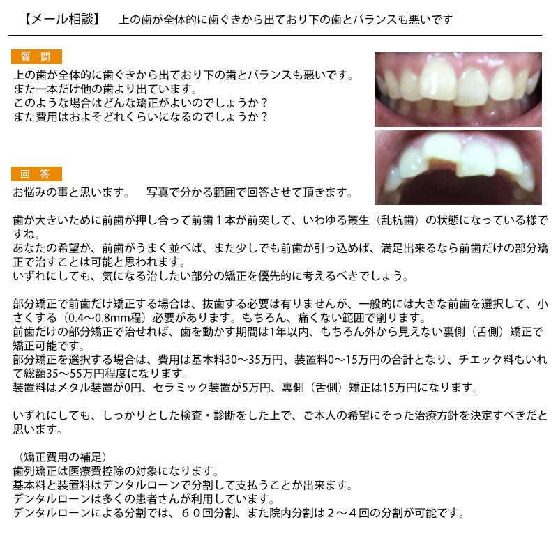 上の歯が全体的に歯ぐきから出て 下の歯とバランスも悪い どんな矯正が?費用は?