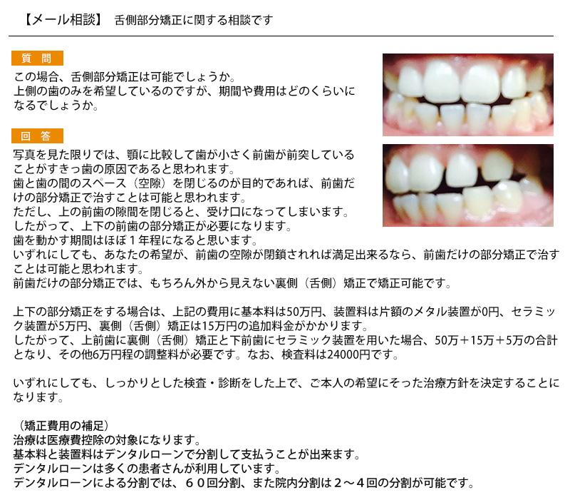 舌側部分矯正は可能?上側の歯のみを希望 期間や費用は?