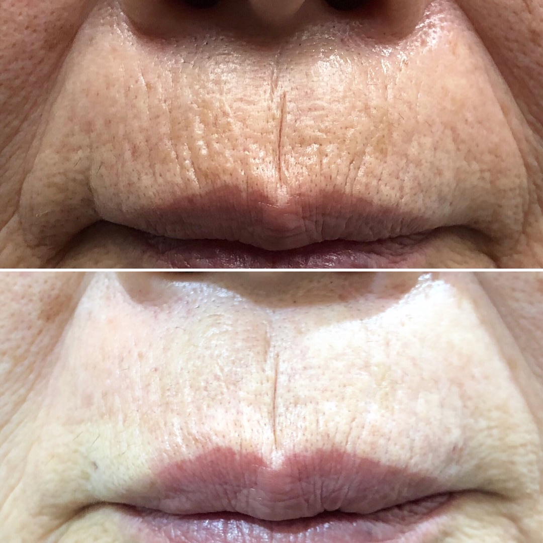 唇の上の縦じわを改善するヒアルロン酸 ビフォーアフター