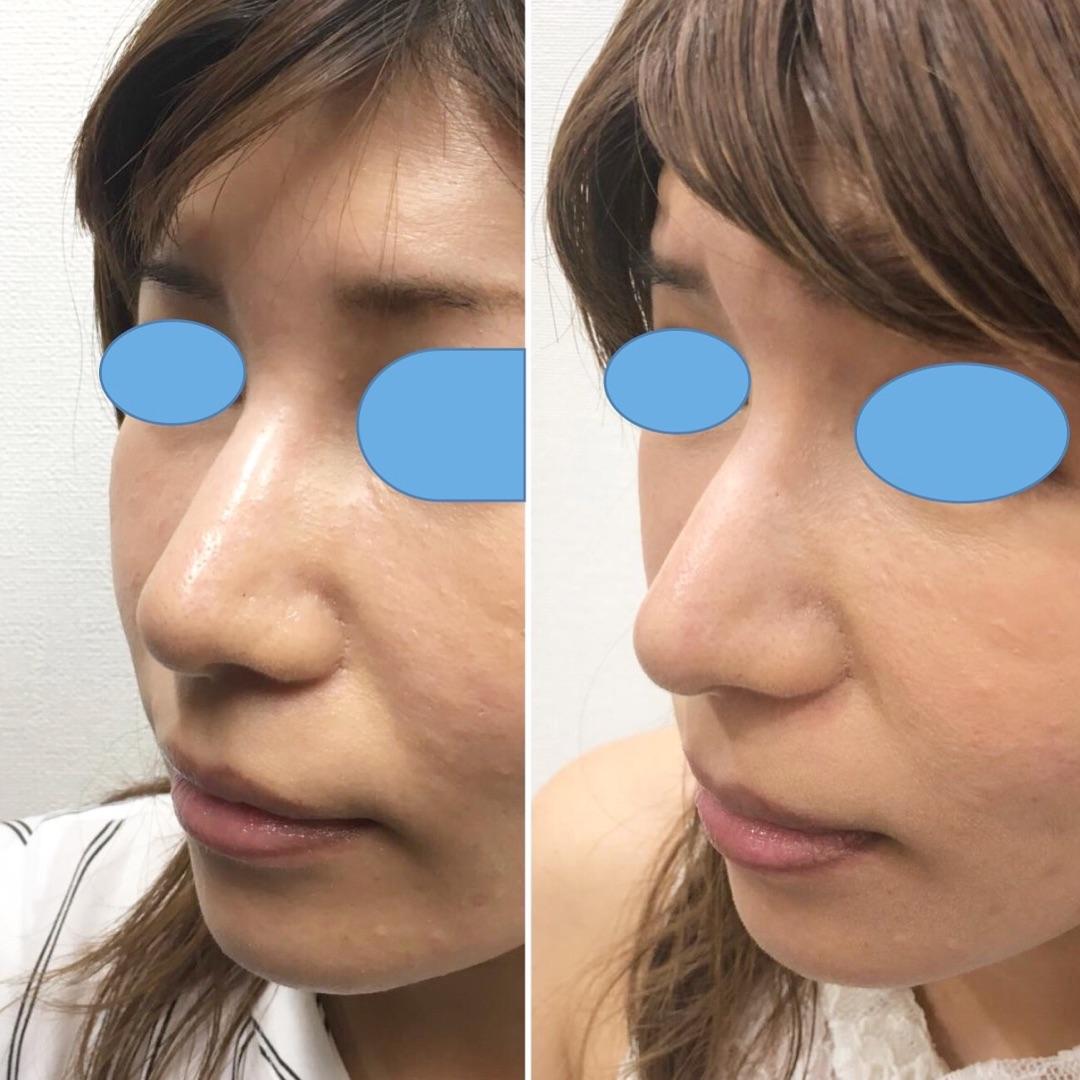他院様で入れた鼻ヒアルロン酸を美しい形に減らす。ヒアルロニダーゼ