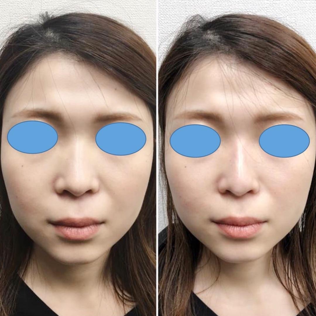 鼻ヒアルロン酸✨ビフォーアフター