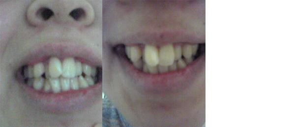 (写真相談) 前歯ががたがたで矯正を検討中。抜歯が