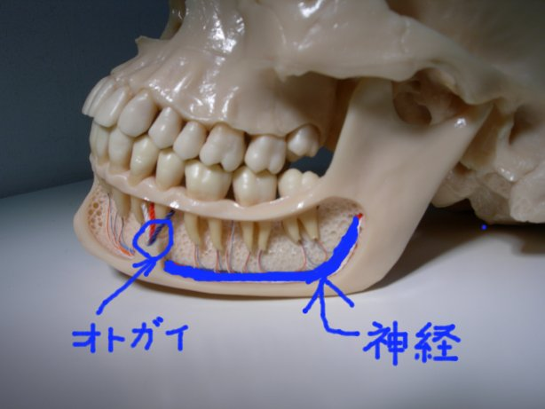 インプラントのリスク 下歯槽神経