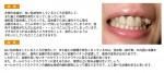前歯が、白い詰め物をしているところが変色して・・・