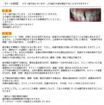 すきっ歯で悩んで 上も下も隙間がすごい 上の歯だけ部分矯正は? 舌側矯正で期間は