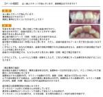 出っ歯とスキッパで悩んでいます。裏側矯正はできますか?期間と費用は