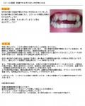 前歯で噛みきれないのが気に どの様な治療になりどのくらいの期間と費用? 矯正した場合もとに戻って?
