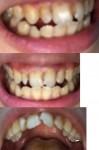 前歯と開口が気になります。 左前歯が昔より前に出てきて目立つようになってしまいました