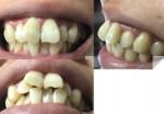 27歳 子供の時から出っ歯に悩んで前歯だけ治せれば 費用を抑えてセラミックか裏側矯正を希望 費用は?
