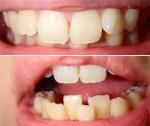 下の前歯の歯並びが気になります。 希望は下の前歯の歯並びだけを直したい、部分矯正できますか?