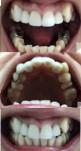 幼い頃から歯並びに悩んで 前歯5本神経治療をしセラミック 部分矯正治療は可能? 妊婦でも矯正は可能?