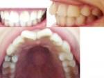 出っ歯で 寝ている時 歯ぎしり 歯がすり減り 口を開けっぱなし 口を閉めるとあごがでこぼこ アデノイド