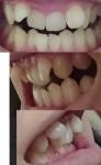 永久歯に生え変わる時から歯並びが悪かった 顎が大きくなると助言を 期間的にも経済的にも部分矯正が