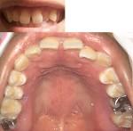 すきっ歯が気になっていて部分矯正をしたい 今の状態だと可能ですか?費用も気になり