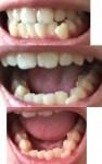 下の歯の歯並び悪く 前歯の噛み合わせが悪く 奥歯が噛み合わず どんな矯正で治す? どれくらい改善が?