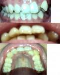 八重歯(叢生)の部分矯正をしたいのですが、可能? 学生なので費用をなるべく抑えたい