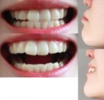 20歳女 自分の横顔(鼻から顎)がコンプレックス 矯正したらこのEラインは綺麗に?親知らずは4本