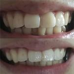 前に歯科矯正をしたのですが、後戻りで歯並びが随分崩れて また治したい 金額・期間は?