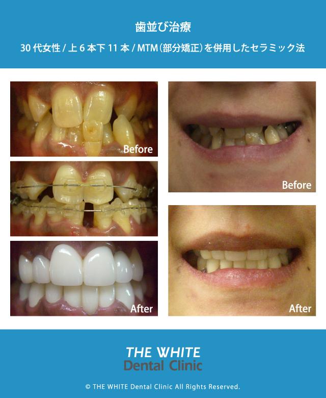 部分矯正とセラミック法を併用した歯並び治療