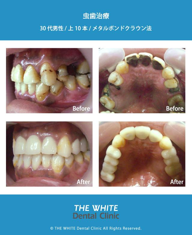 保険の歯の変色や虫歯治療