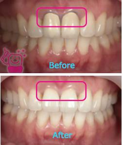 前歯2本をセラミック矯正で白く