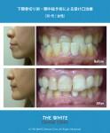 下顎骨切り手術による受け口治療