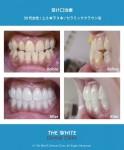 受け口と歯の色治療(セラミック法)