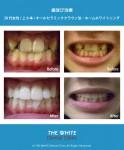セラミック法による歯並び治療とホワイトニング