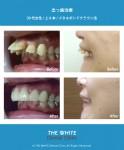 出っ歯の短期間治療(セラミック法)