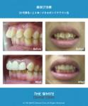 歯並び治療(セラミック法による短期間矯正)