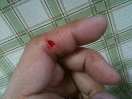 擦り傷ができた指