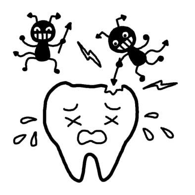 虫歯イラスト