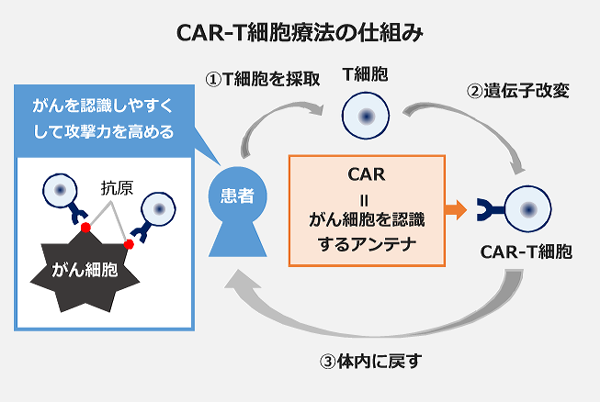 CAR-T細胞療法の仕組み。1、患者からT細胞を採取。2、採取したT細胞の遺伝子を改変。3、改変し、がん細胞を認識するアンテナを得たCAR-T細胞を体内に戻す