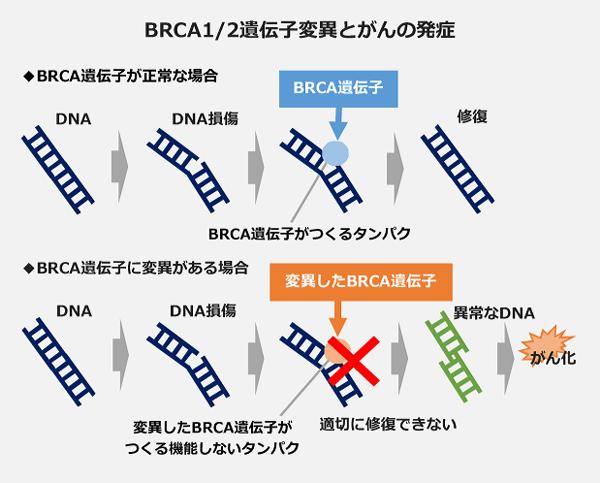 BRCA1/2遺伝子変異とがんの発症
